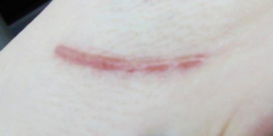 凹陷性疤痕原因,这些病因导致皮肤真皮层及皮下组织